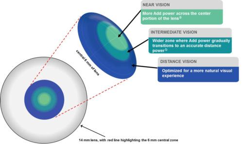 3-Zone Progressive-Design
