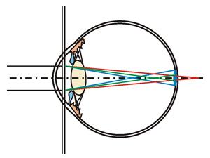 Chromatische Längsaberration Auge Farbzerstreuung