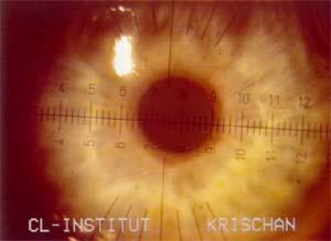 Pupillendurchmesser