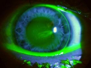Fremdkörper unter Kontaktlinse