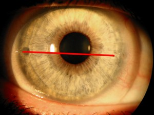gedrehte Kontaktlinse