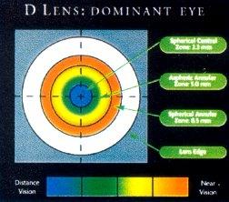 Dominantes Auge