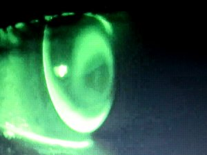 Fluoresceinbild
