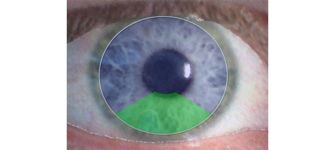 Formstabile Bifokalkontaktlinse