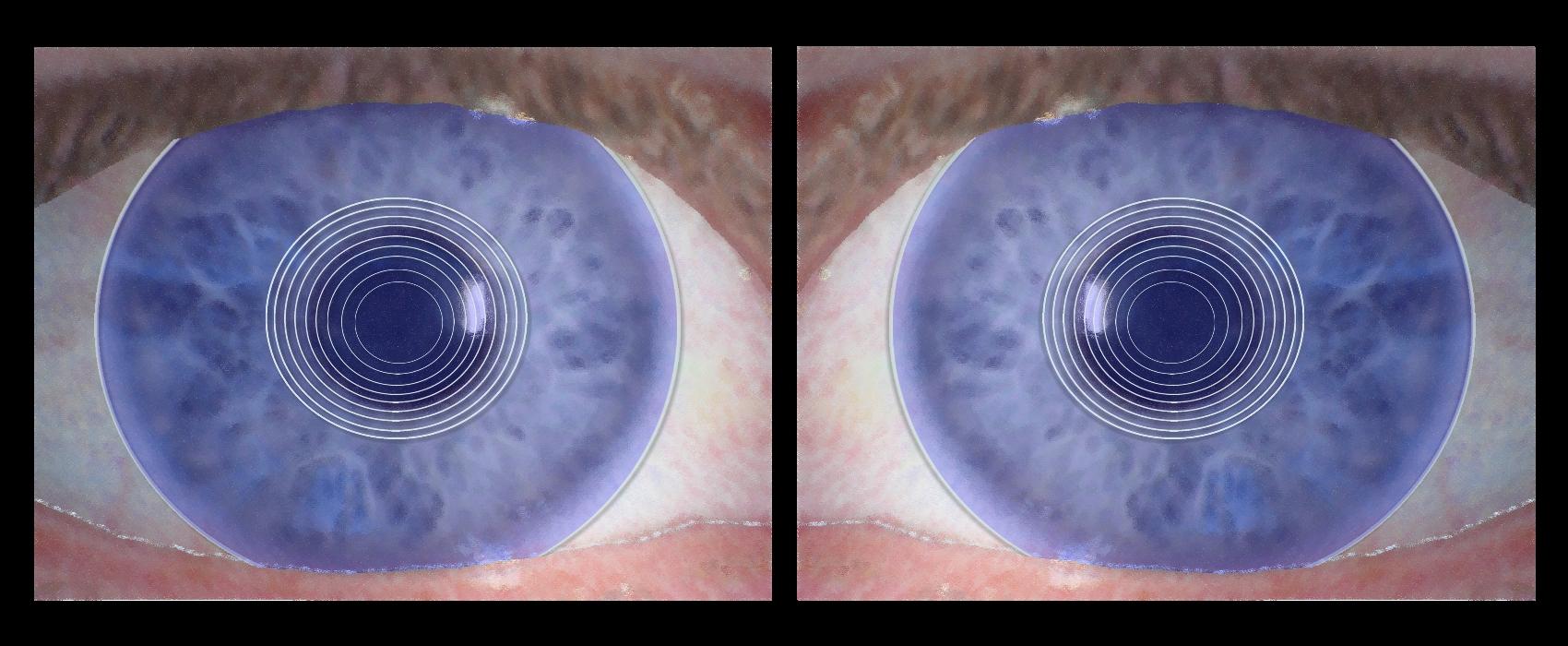 Diffraktives System