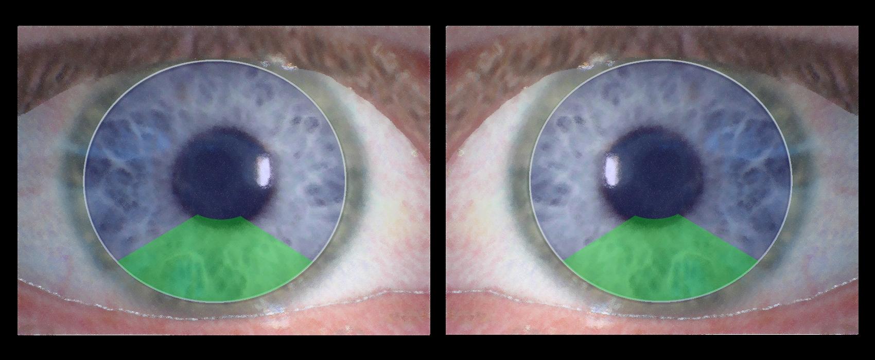 Alternierende Bifokalkontaktlinsen