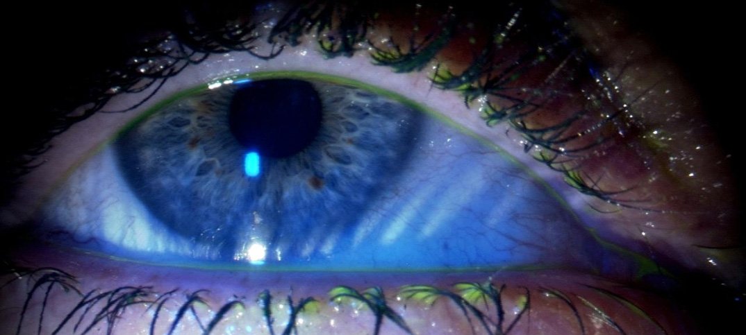 Liposomensprays gegen trockene Augen