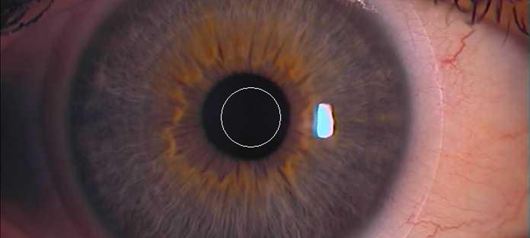 weiche Bifokalkontaktlinse, zentrale Zone zentriert