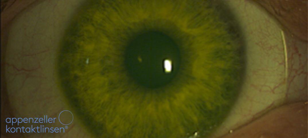 Appenzeller Kontaktlinsen i-MATRIX