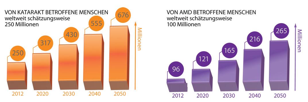 Zunahme von AMD und Katarakt
