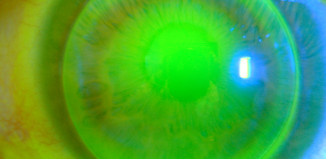 Fluoreszein