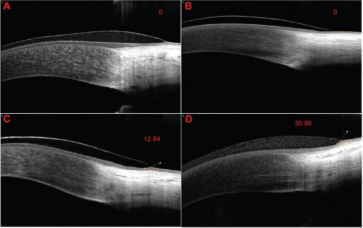 Unterschiedliche Eindellwinkel bei unterschiedlichen Randprofilen von Kontaktlinsen