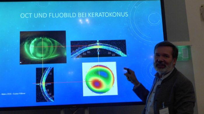 Gustav Pöltner, VDCO 2016, OCT Keratokonus Keratoplastik