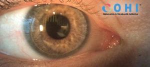 Zweitages IntensivWorkshop Kontaktlinsenassistenz am OHI @ OHI Ausbildungszentrum | Wien | Wien | Österreich