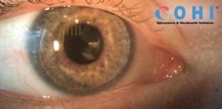 OHI Kontaktlinsenassistenz
