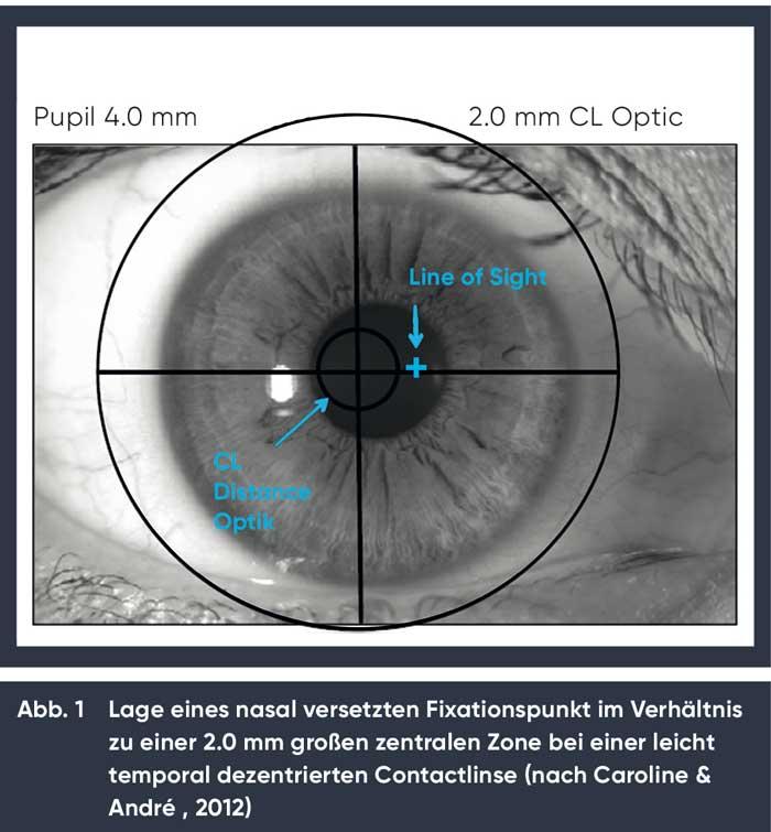 Lage des Fixationspunktes im Verhältnis zur zentralen Zone bei einer leicht temporal dezentrierten Contactlinse