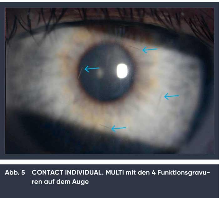 Es empfiehlt sich die endgültige Dezentration anhand der Funktionsgravuren der Contactlinse auf dem Auge zu bestimmen