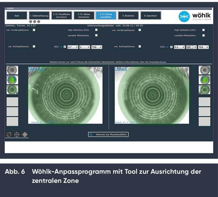Noch einfacher ist die Bestimmung der Dezentration und die Bestellung der Contactlinsen anhand der Simulation des Contactlinsensitzes im Wöhlk-Anpassprogramm
