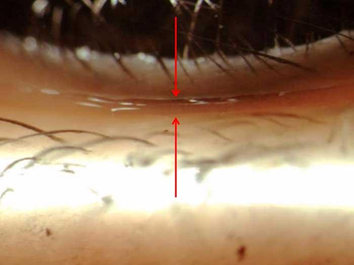 Beobachtung der Höhe des Tränenmeniskus (TMH)
