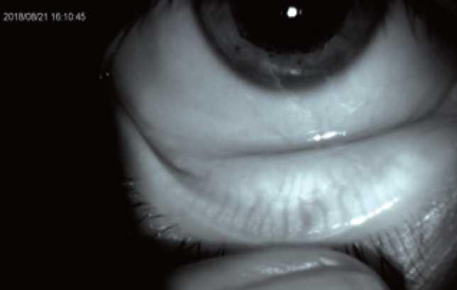 Das einzigartige Infrarot Lichtquellenmodul unterstützt die Beobachtung der Meibom-Drüsen, gibt Aufschluss über die Tränenfilmqualität und unterstützt somit selbst komplizierte Fälle bei der Anpassung von Kontaktlinsen.
