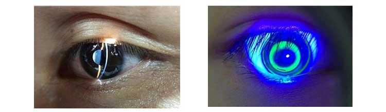 MediWorks mobile Spaltlampe S150