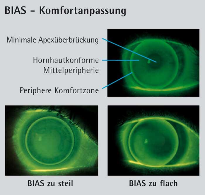Die Grundidee der BIAS und BIAS-F ist das Prinzip der Komfortanpassung