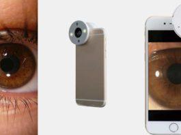 Smartphone Eye Adapter QuikVue
