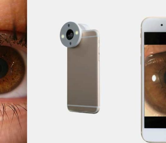 Smartphone Eye Adapter QuikVue