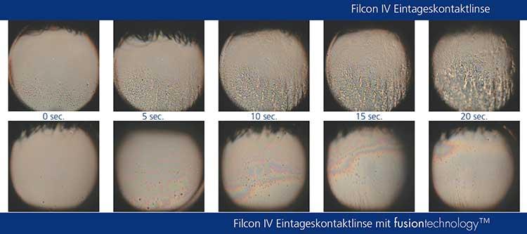 Interferometrie-Vergleich des prekornealen Tränenfilms