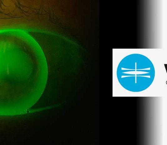 WÖHLK bietet Kontaktlinsenseminar im Oktober 2019 an