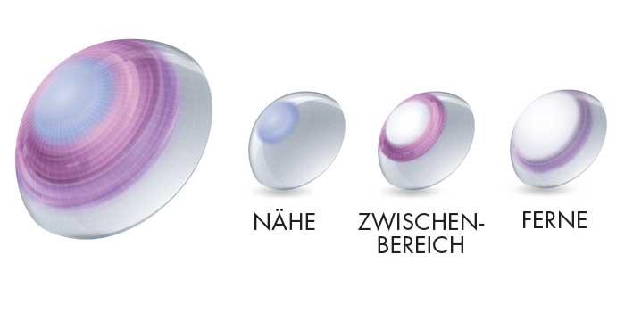 Das Precision Profile® Design[12] verfügt über ein Linsendesign mit zentralem Nahbereich, welches synergetisch mit der natürlichen Pupillenfunktion des Auges arbeitet