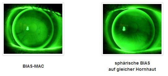 Die MAC ist ideal für die einfache Versorgung mittlerer Hornhautastigmatismen