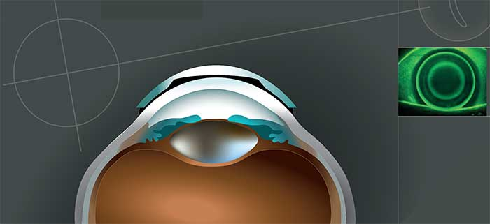 """So dienenKSIKontaktlinsen um die Myopie """"in Schranken"""" zu weisen, respektive um diese deutlich zu verlangsamen bzw. im Optimalfall sogar zu stoppen"""