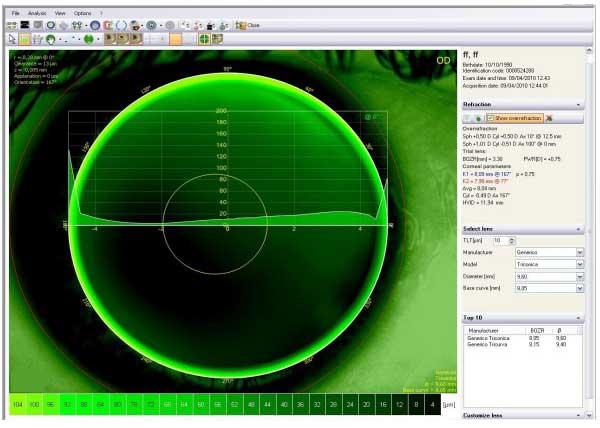 Eine eigene Best-Fit-Simulation stellt den zu erwartenden Linsensitz, bezogen auf die von Ihrer Datenbank gewählten Linsenparameter dar